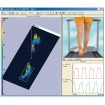 Bieżnie Zebris FDM-T do analizy chodu